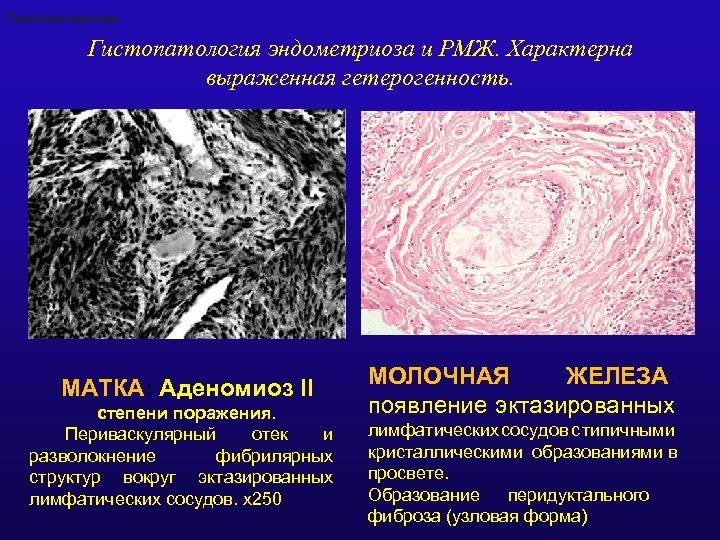 Гистопатология эндометриоза и РМЖ. Характерна выраженная гетерогенность. МАТКА: Аденомиоз II степени поражения. Периваскулярный отек