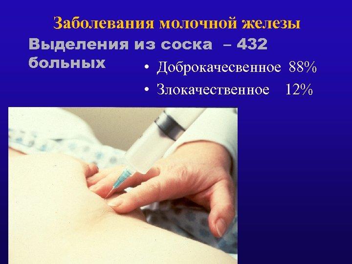 Заболевания молочной железы Выделения из соска – 432 больных • Доброкачесвенное 88% • Злокачественное