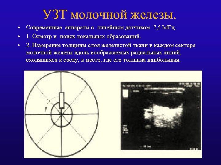 УЗТ молочной железы. • Современные аппараты с линейным датчиком 7, 5 МГц. • 1.