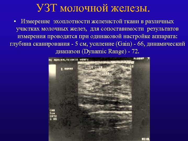 УЗТ молочной железы. • Измерение эхоплотности железистой ткани в различных участках молочных желез, для