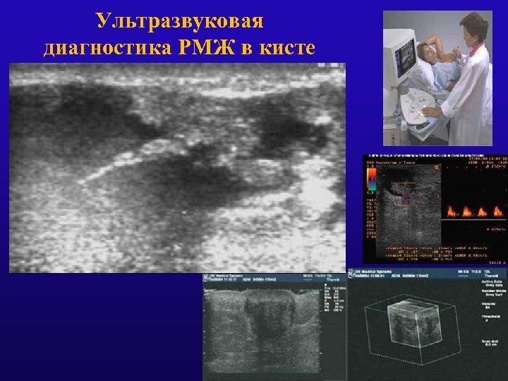 Ультразвуковая диагностика РМЖ в кисте