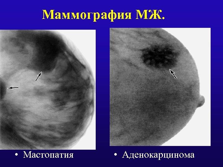 Маммография МЖ. • Мастопатия • Аденокарцинома