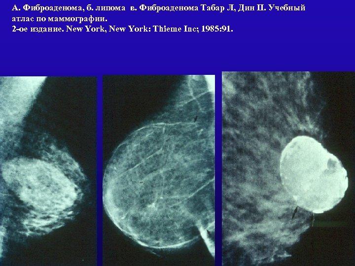 А. Фиброаденома, б. липома в. Фиброаденома Табар Л, Дин П. Учебный атлас по маммографии.
