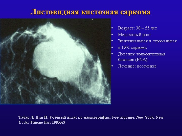 Листовидная кистозная саркома • • • Возраст: 30 – 55 лет Медленный рост Эпителиальная