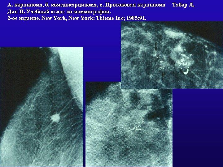 А. карцинома, б. комедокарцинома, в. Протоковая карцинома Табар Л, Дин П. Учебный атлас по