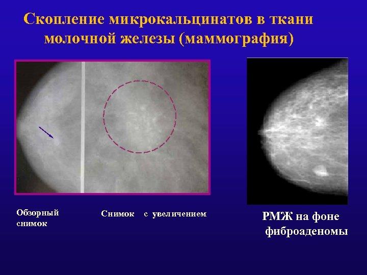 Скопление микрокальцинатов в ткани молочной железы (маммография) Обзорный снимок Снимок с увеличением РМЖ на