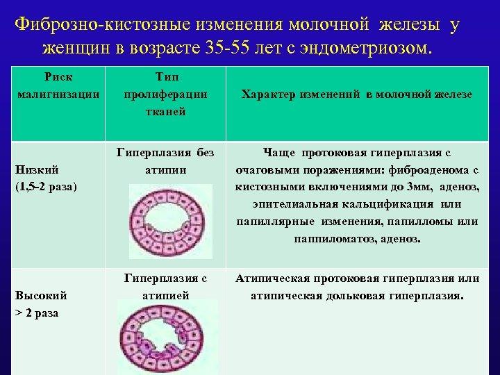 Фиброзно-кистозные изменения молочной железы у женщин в возрасте 35 -55 лет с эндометриозом. Риск