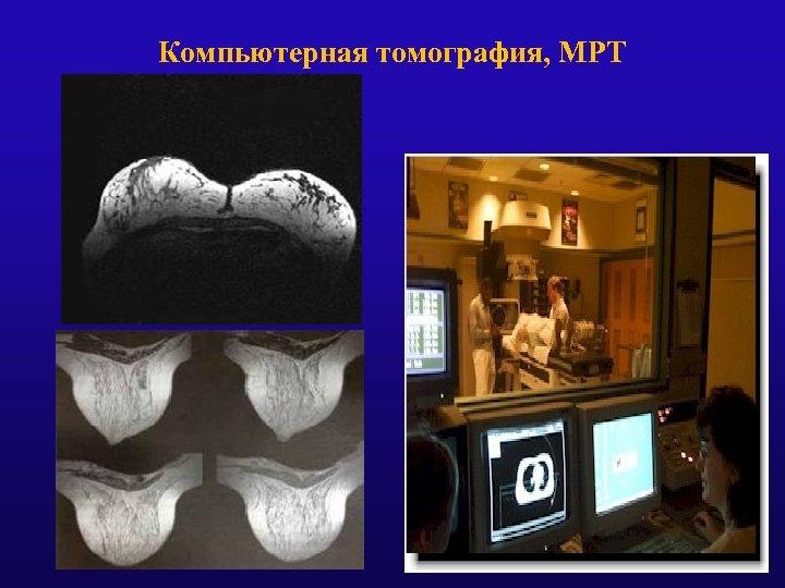 Компьютерная томография, МРТ