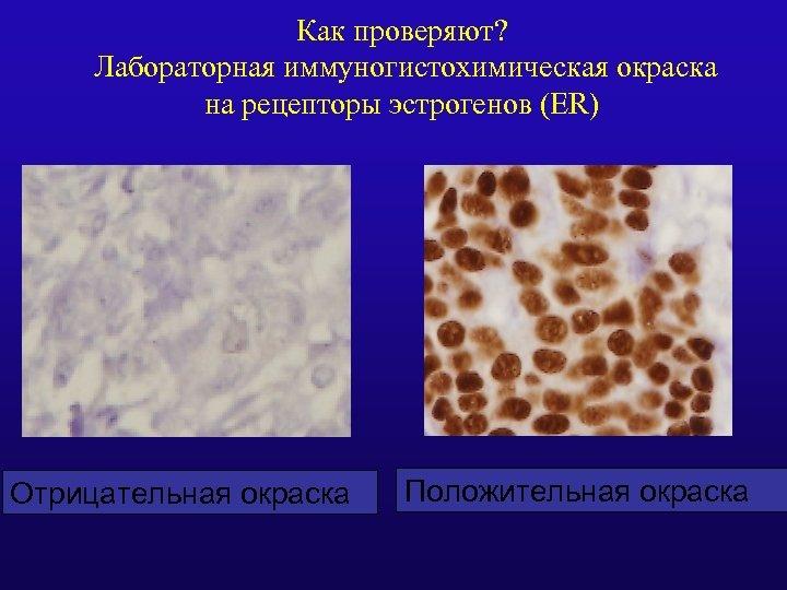 Как проверяют? Лабораторная иммуногистохимическая окраска на рецепторы эстрогенов (ER) Отрицательная окраска Положительная окраска