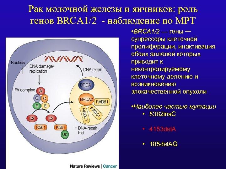 Рак молочной железы и яичников: роль генов BRCA 1/2 - наблюдение по МРТ •