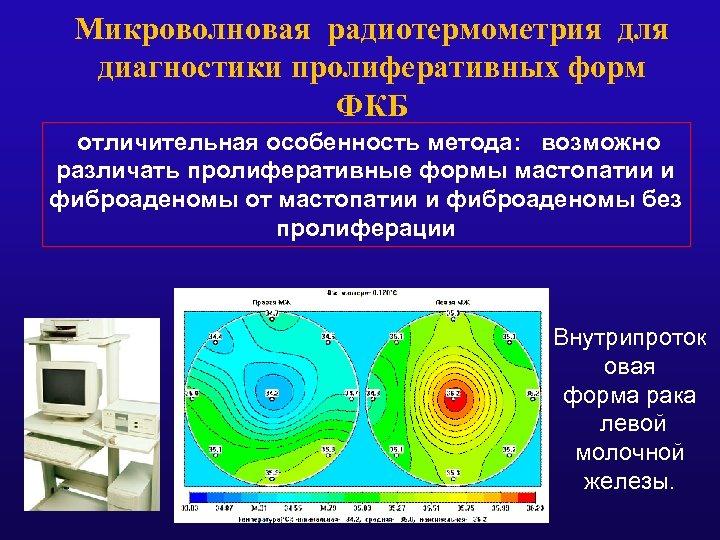 Микроволновая радиотермометрия для диагностики пролиферативных форм ФКБ отличительная особенность метода: возможно различать пролиферативные формы