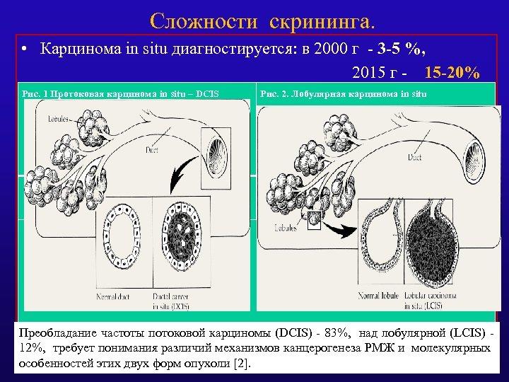 Сложности скрининга. • Карцинома in situ диагностируется: в 2000 г - 3 -5 %,
