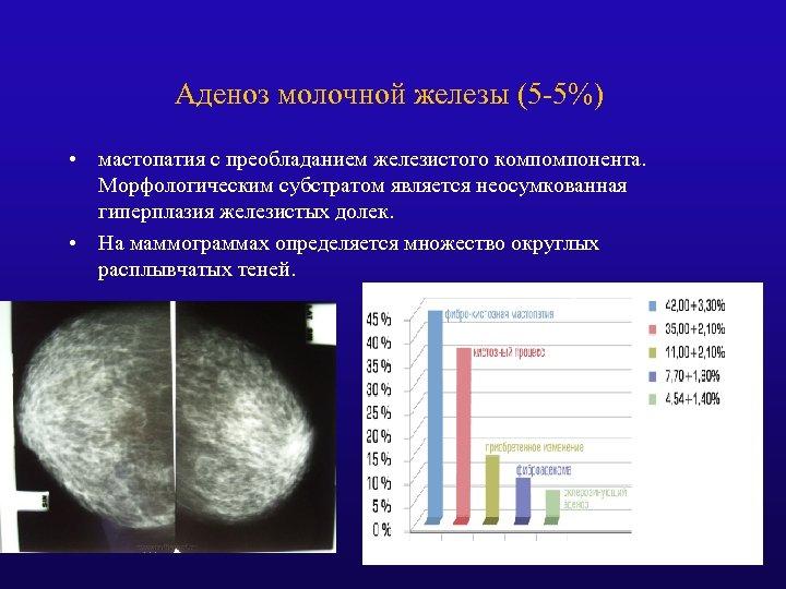 Аденоз молочной железы (5 -5%) • мастопатия с преобладанием железистого компомпонента. Морфологическим субстратом является