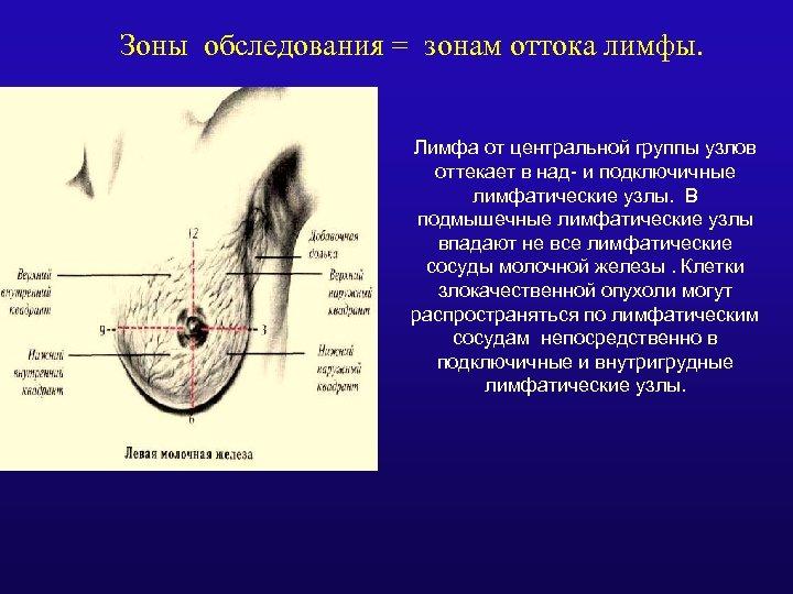 Зоны обследования = зонам оттока лимфы. Лимфа от центральной группы узлов оттекает в