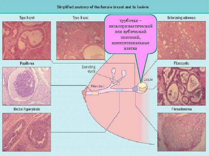 трубочки – низкопризматический или кубический эпителий, миеэпителиальные клетки
