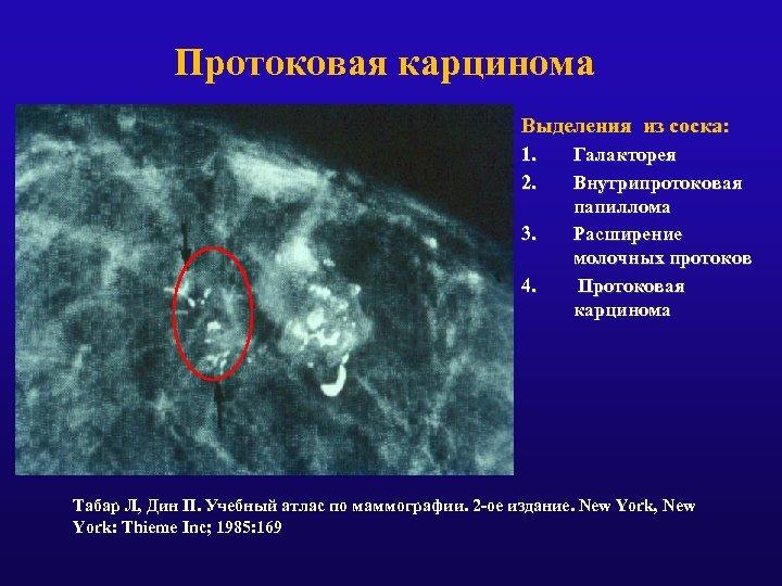 Протоковая карцинома Выделения из соска: 1. 2. 3. 4. Галакторея Внутрипротоковая папиллома Расширение молочных