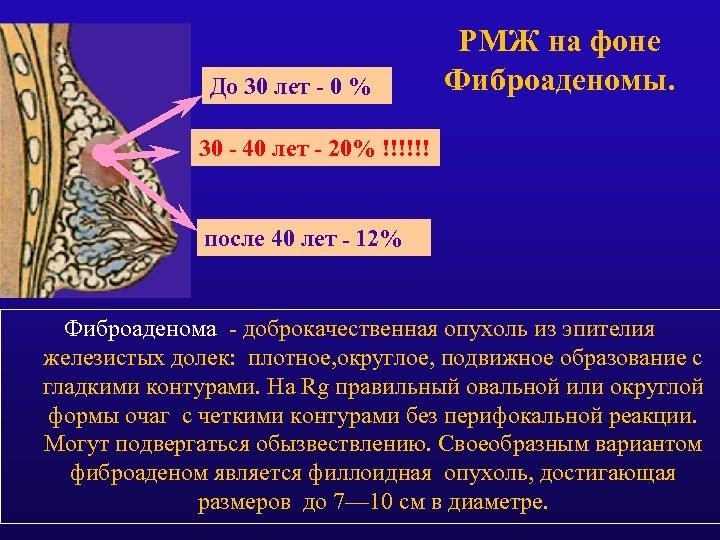 До 30 лет - 0 % РМЖ на фоне Фиброаденомы. 30 - 40 лет