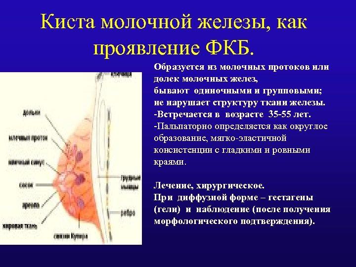 Киста молочной железы, как проявление ФКБ. Образуется из молочных протоков или долек молочных желез,