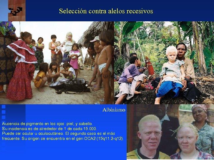 Selección contra alelos recesivos Albinismo Ausencia de pigmento en los ojos piel, y cabello.