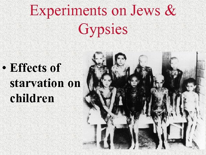 Experiments on Jews & Gypsies • Effects of starvation on children