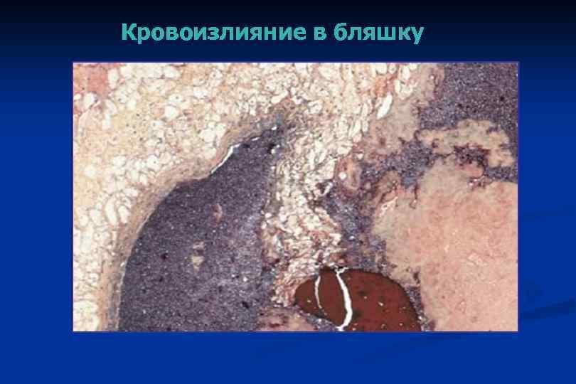 Кровоизлияние в бляшку