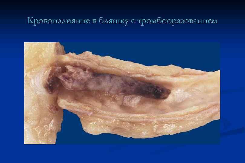Кровоизлияние в бляшку с тромбооразованием