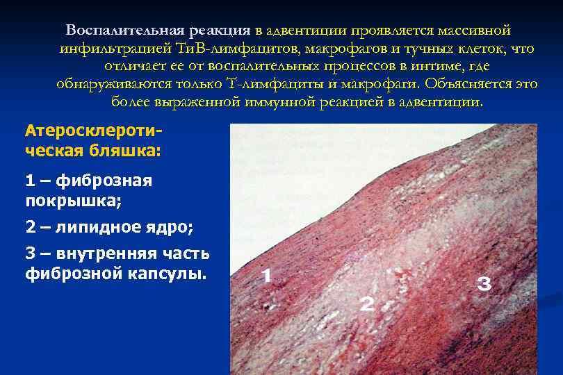 Воспалительная реакция в адвентиции проявляется массивной инфильтрацией Ти. B-лимфацитов, макрофагов и тучных клеток, что