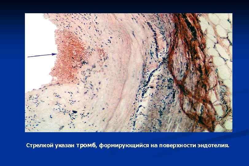Стрелкой указан тромб, формирующийся на поверхности эндотелия.