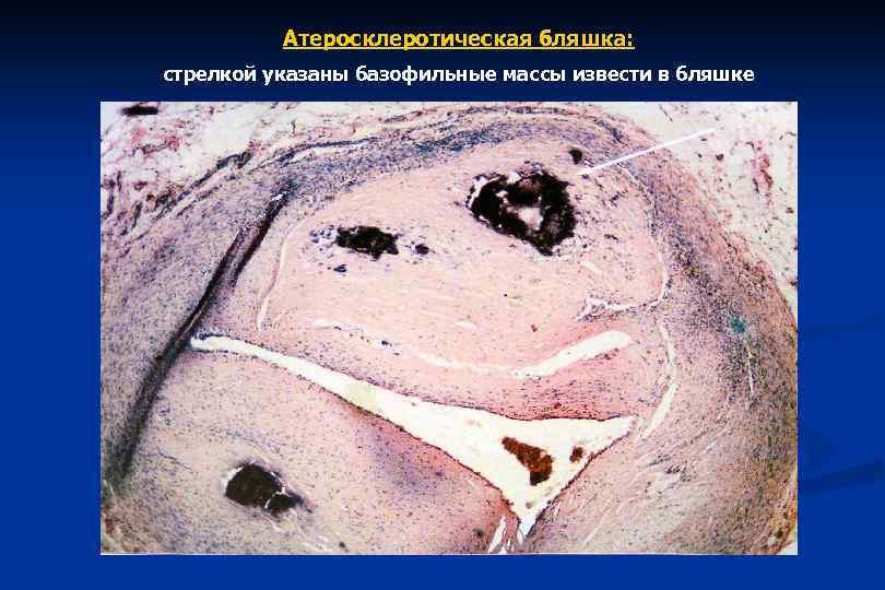 Атеросклеротическая бляшка: стрелкой указаны базофильные массы извести в бляшке