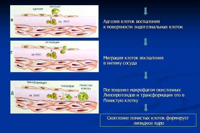 Адгезия клеток воспаления к поверхности эндотелиальных клеток Миграция клеток воспаления в интиму сосуда Поглощение