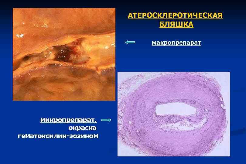 АТЕРОСКЛЕРОТИЧЕСКАЯ БЛЯШКА макропрепарат микропрепарат, окраска гематоксилин-эозином