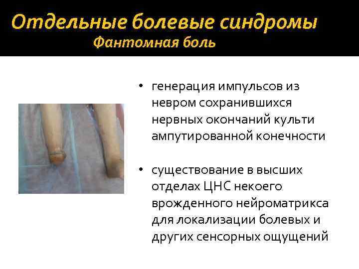 Отдельные болевые синдромы Фантомная боль • генерация импульсов из невром сохранившихся нервных окончаний культи