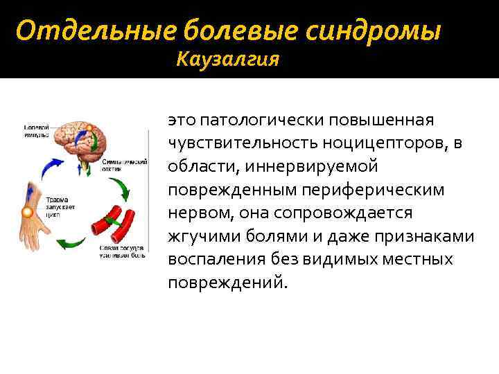 Отдельные болевые синдромы Каузалгия это патологически повышенная чувствительность ноцицепторов, в области, иннервируемой поврежденным периферическим
