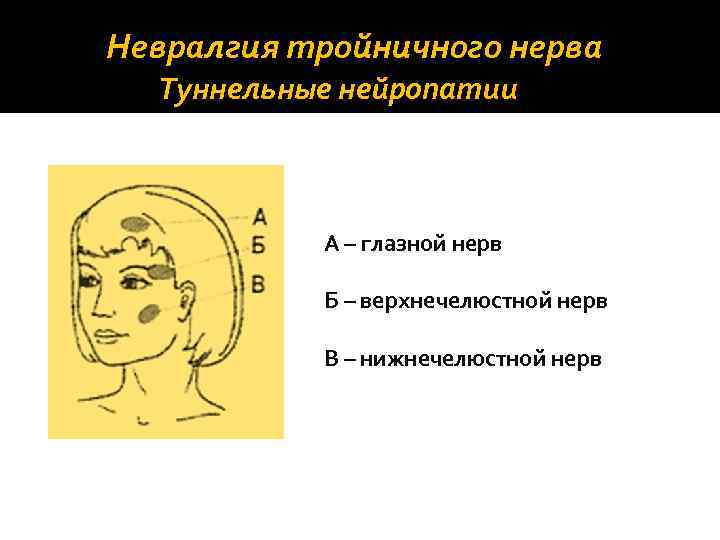 Невралгия тройничного нерва Туннельные нейропатии А – глазной нерв Б – верхнечелюстной нерв В