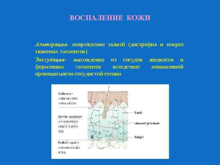 ВОСПАЛЕНИЕ КОЖИ Альтерация- повреждение тканей (дистрофия и некроз тканевых элементов) Экссудация- выхождение из сосудов