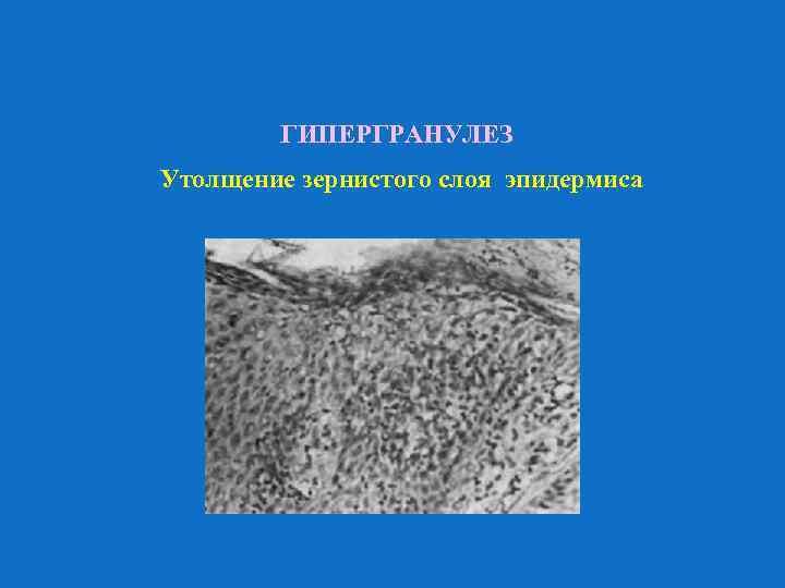 ГИПЕРГРАНУЛЕЗ Утолщение зернистого слоя эпидермиса