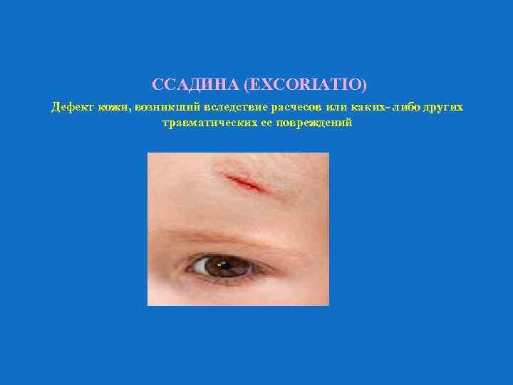 ССАДИНА (EXCORIATIO) Дефект кожи, возникший вследствие расчесов или каких- либо других травматических ее повреждений