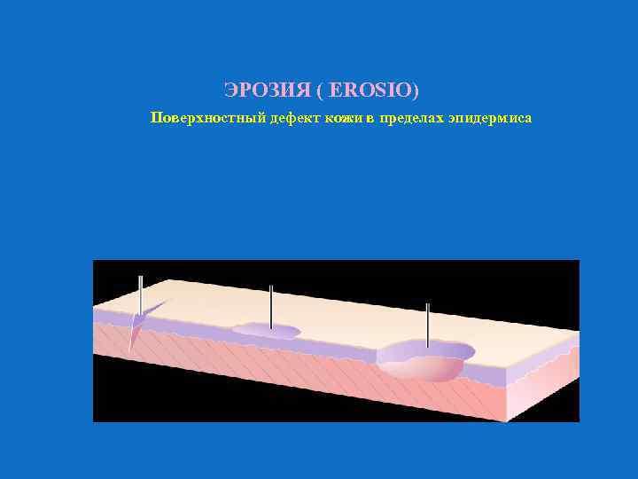 ЭРОЗИЯ ( EROSIO) Поверхностный дефект кожи в пределах эпидермиса