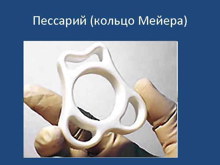 Пессарий (кольцо Мейера)