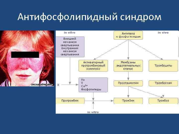 Антифосфолипидный синдром