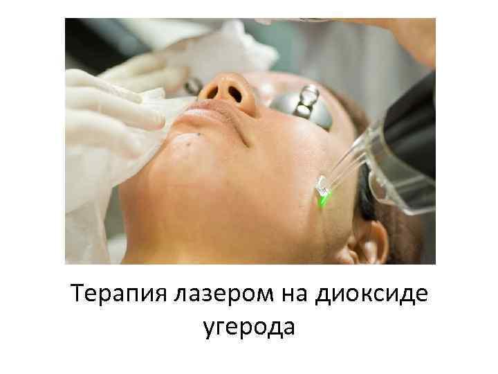 Терапия лазером на диоксиде угерода