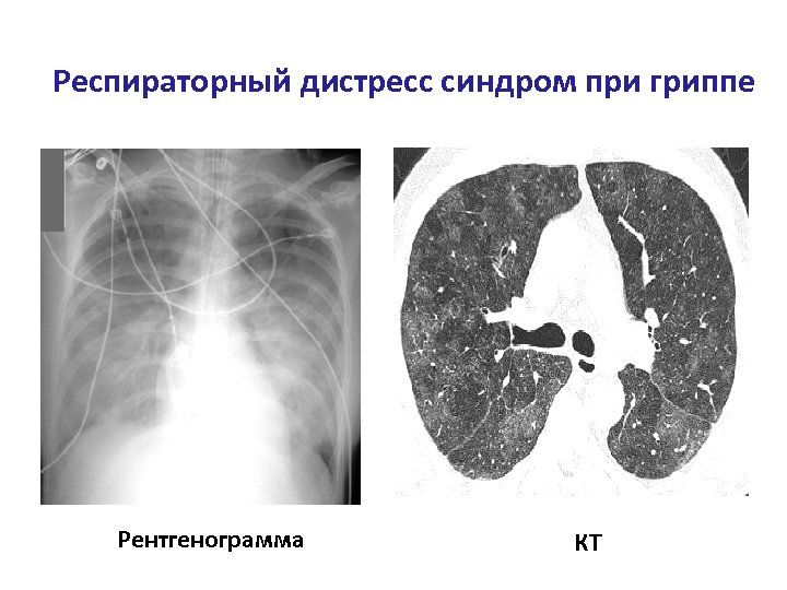 Респираторный дистресс синдром при гриппе Рентгенограмма КТ