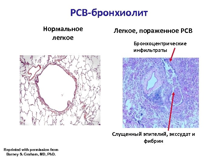 РСВ-бронхиолит Нормальное легкое Легкое, пораженное РСВ Бронхоцентрические инфильтраты Слущенный эпителий, экссудат и фибрин Reprinted