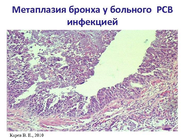 Метаплазия бронха у больного РСВ инфекцией Карев В. Е. , 2010