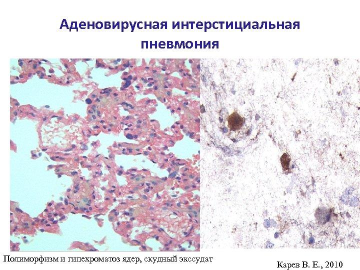 Аденовирусная интерстициальная пневмония Полиморфизм и гипехроматоз ядер, скудный экссудат Карев В. Е. , 2010