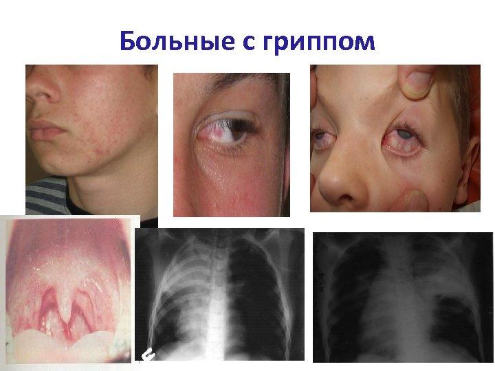 Больные с гриппом