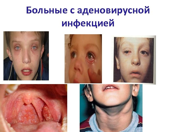 Больные с аденовирусной инфекцией