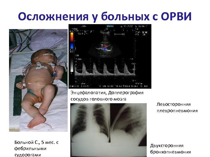 Осложнения у больных с ОРВИ Энцефалопатия, Доплерография сосудов головного мозга Больной С. , 5