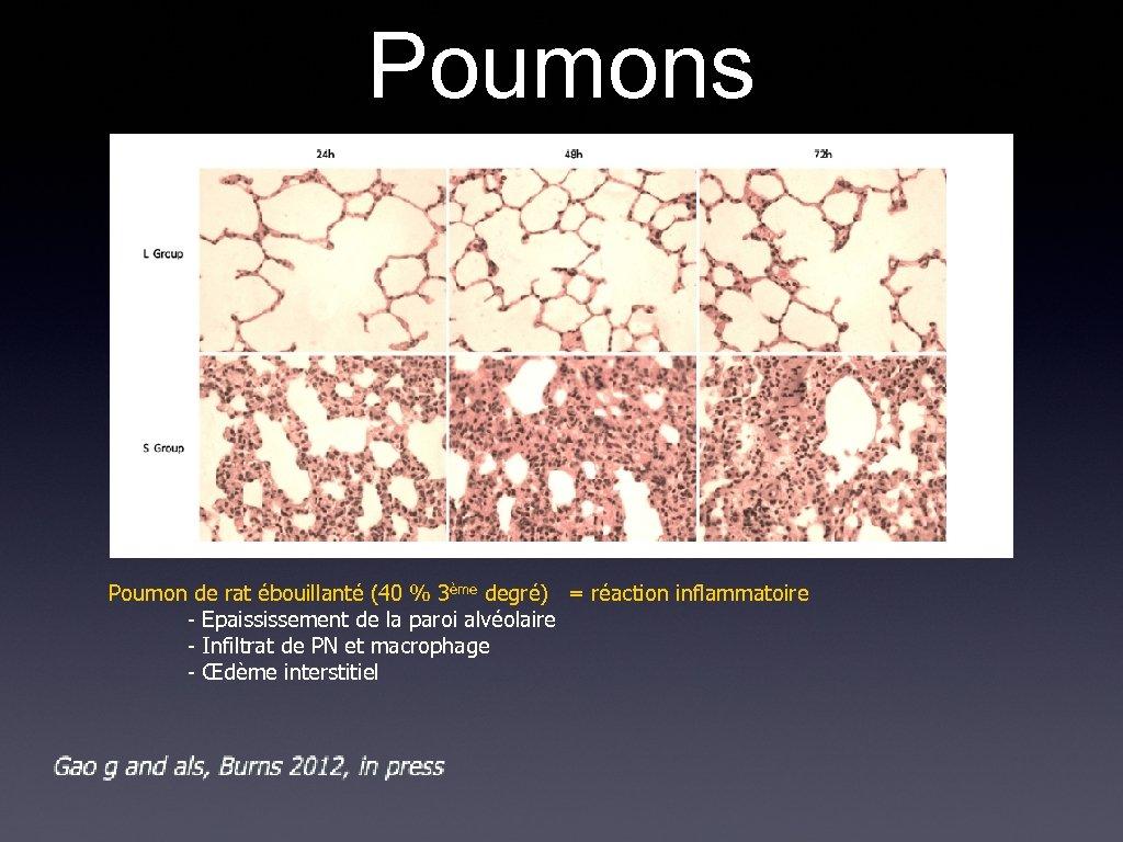 Poumons Poumon de rat ébouillanté (40 % 3ème degré) = réaction inflammatoire - Epaississement
