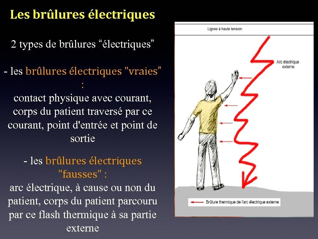"""Les brûlures électriques 2 types de brûlures """"électriques"""" - les brûlures électriques"""